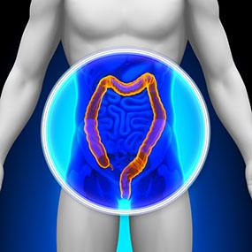 285x285_Newly_Diagnosed_Ulcerative_Colitis_5